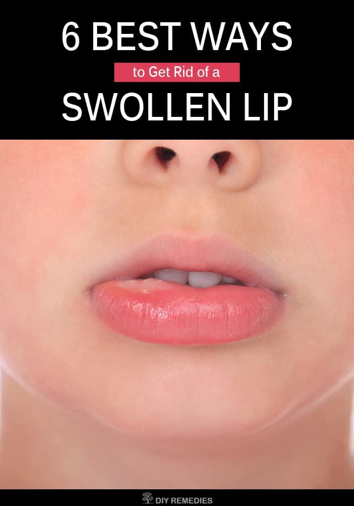 Best Ways to Get Rid of a Swollen Lip