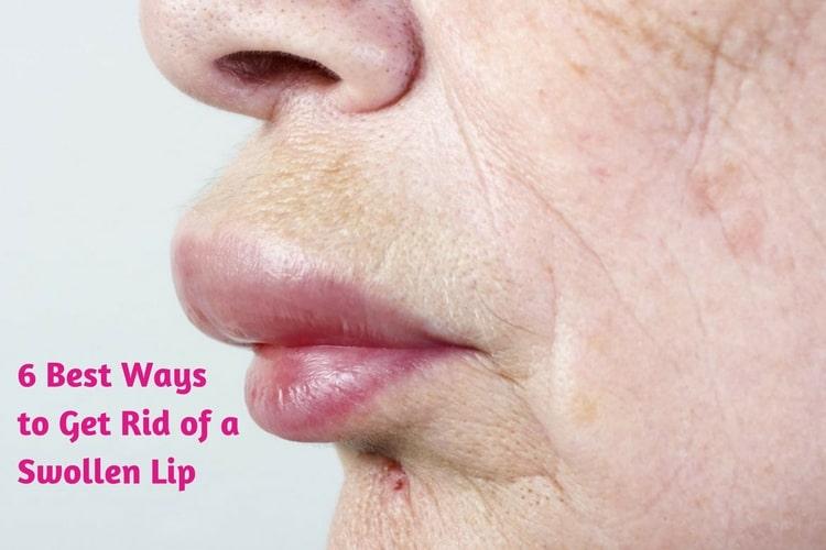 Swollen lips remedies