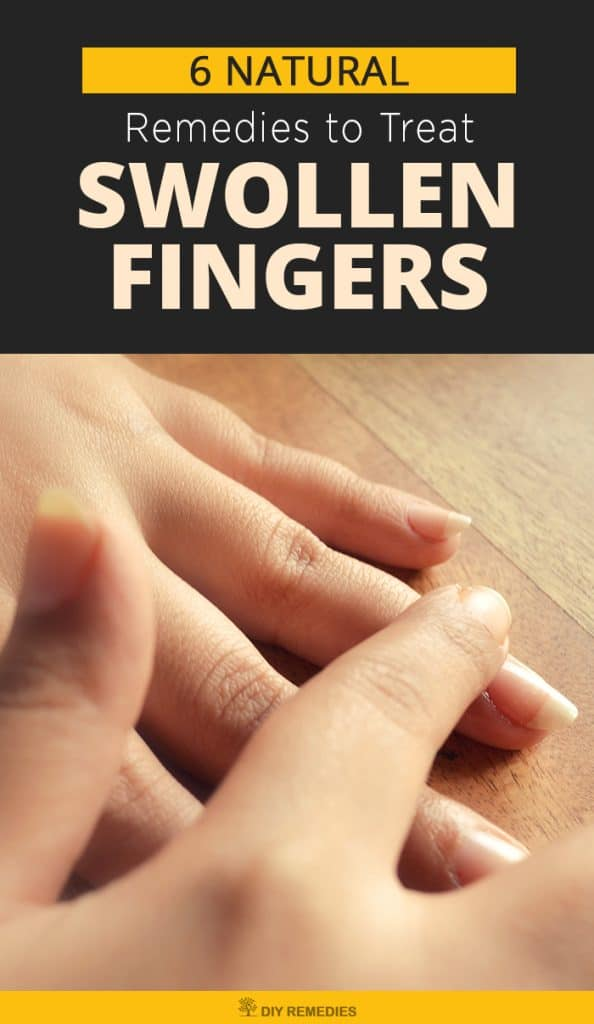 6 Natural Remedies to Treat Swollen Fingers