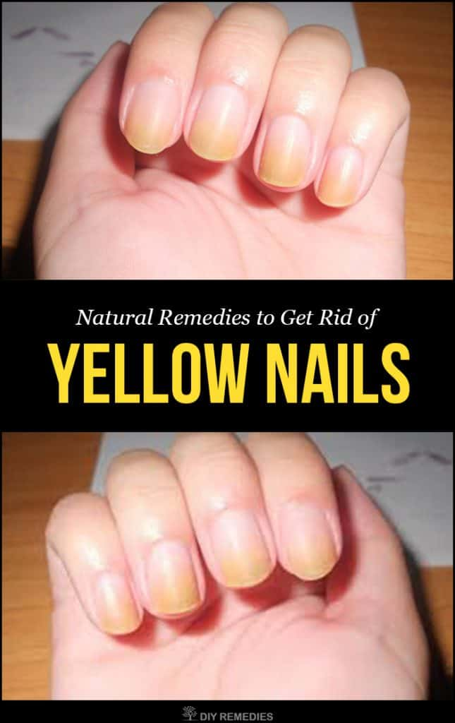 Natural Remedies to Get Rid of Yellow Nails
