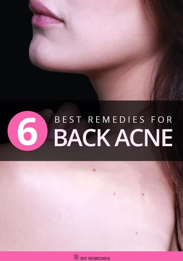 Best Remedies for Back Acne