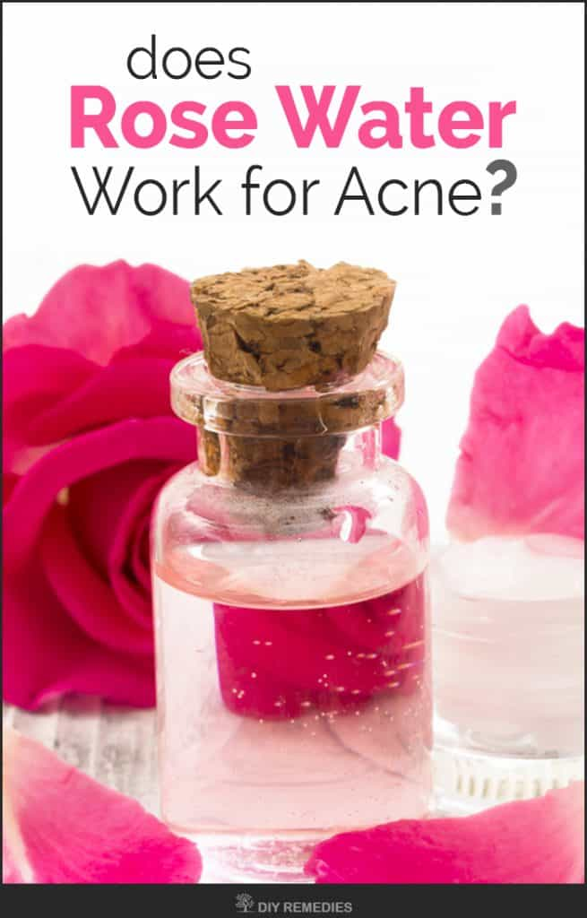 Does Rose Water Work for Acne