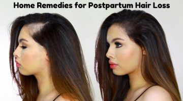 Home Remedies for Postpartum Hair Loss