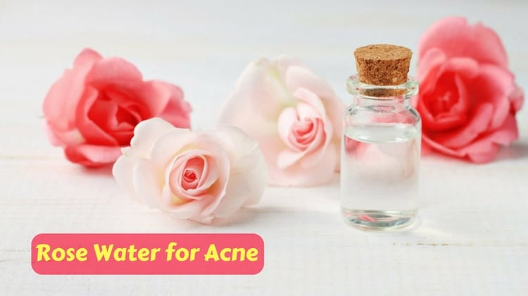 Does Rose Water good for Acne