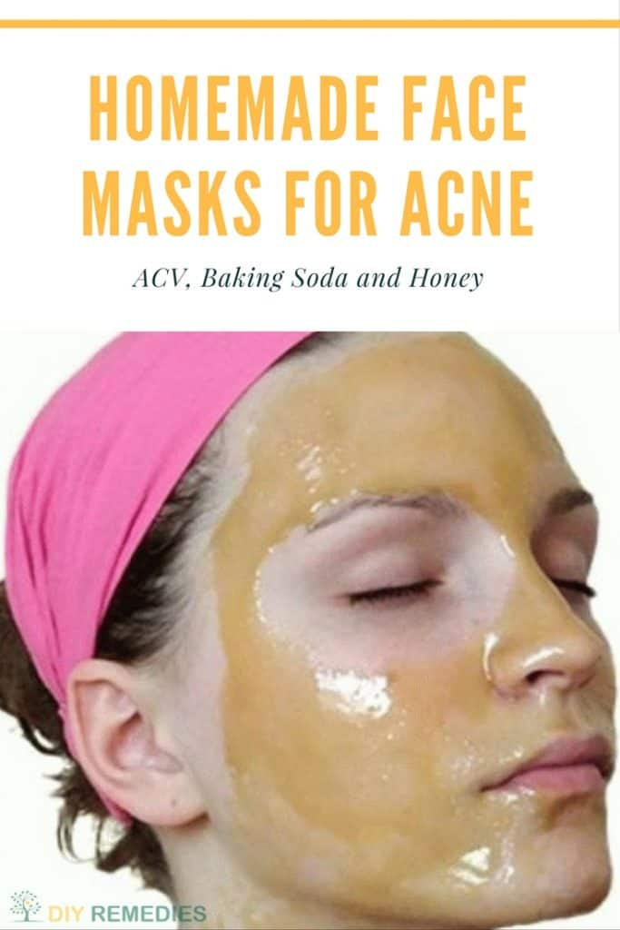 ACV Face Masks for Acne