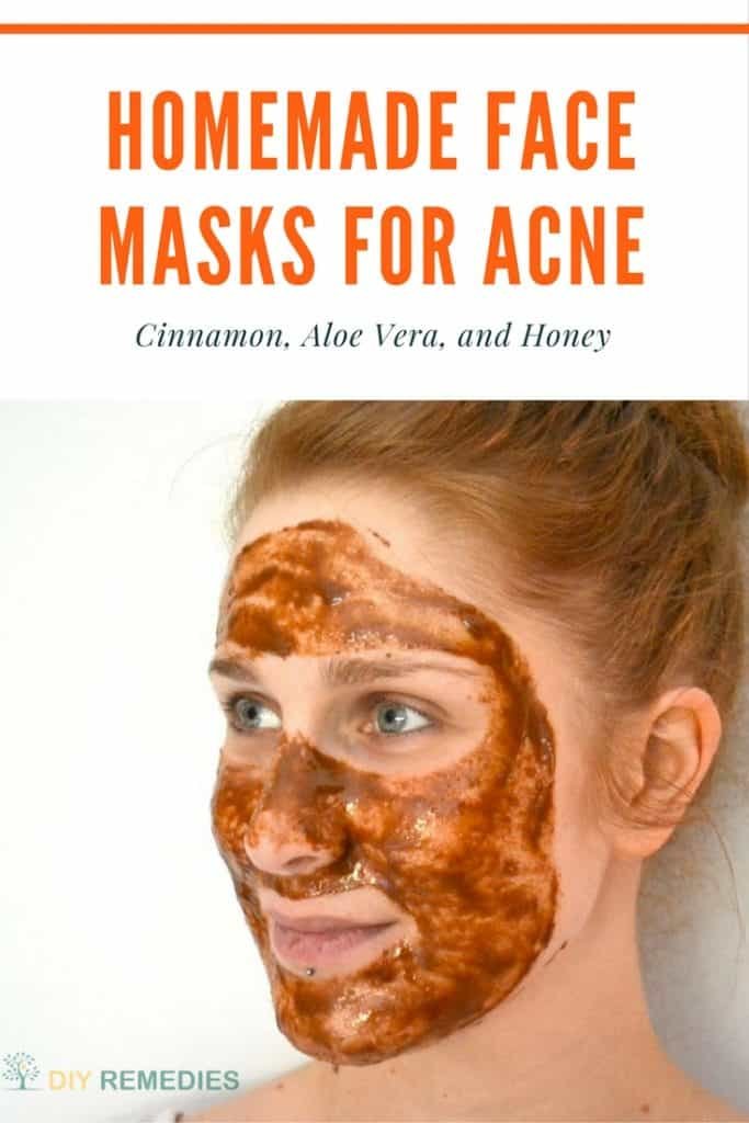 Cinnamon Face Masks for Acne