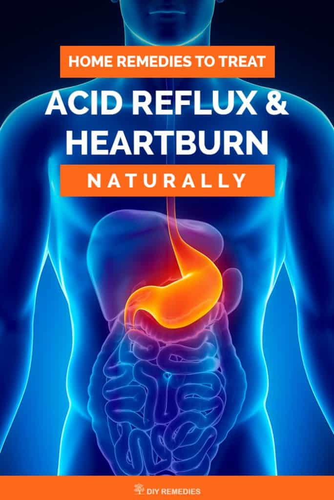 Home Remedies to Treat Acid Reflux and Heartburn Naturally