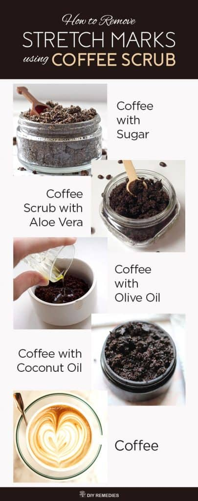 How to Remove Stretch Marks using Coffee Scrub