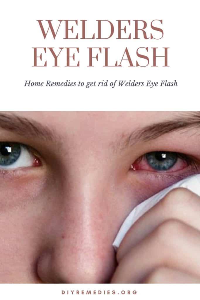 Home Remedies to get rid of Welders Eye Flash
