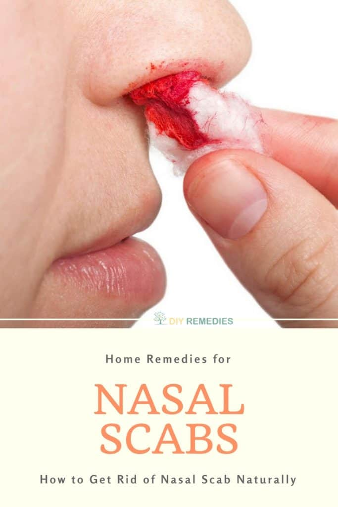 How To Get Rid Of Nasal Allergies Naturally