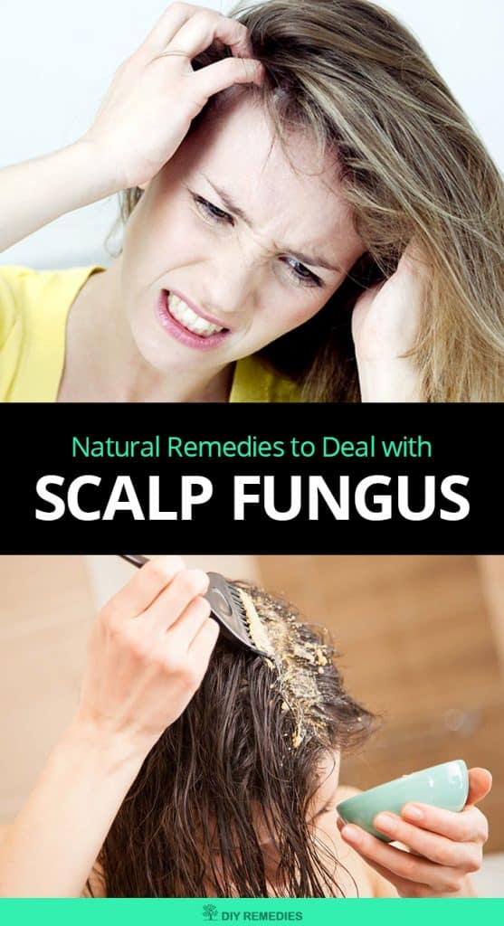 Natural Remedies to Deal with Scalp Fungus