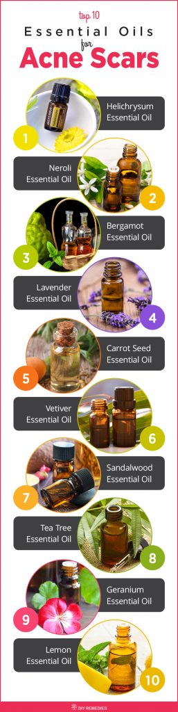 Top 10 Essential Oils for Acne Scars