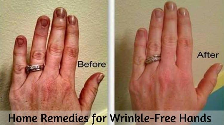 wrinkled hands remedy