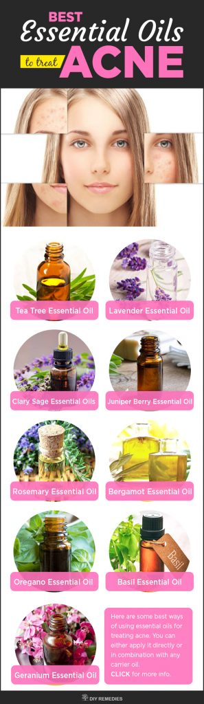 Best Essential Oils to treat Acne