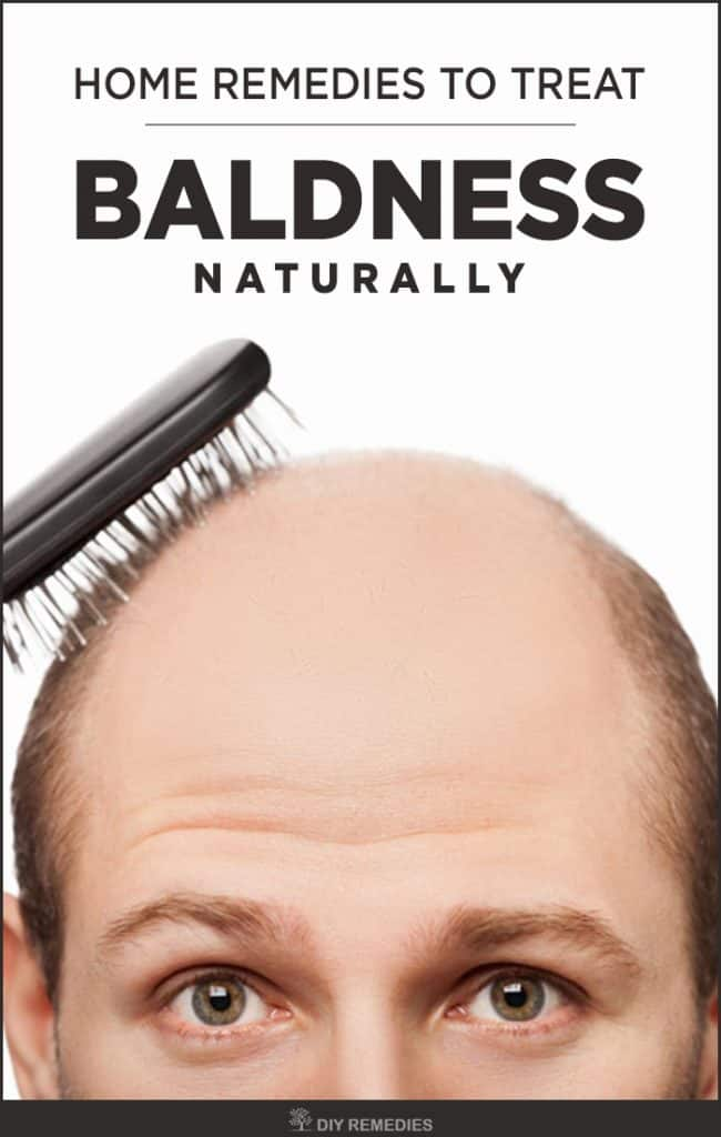 Home Remedies to Treat Baldness Naturally