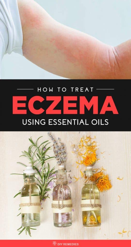How to Treat Eczema using Essential Oils