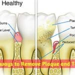 7 Best ways to Remove Plaque and Tartar