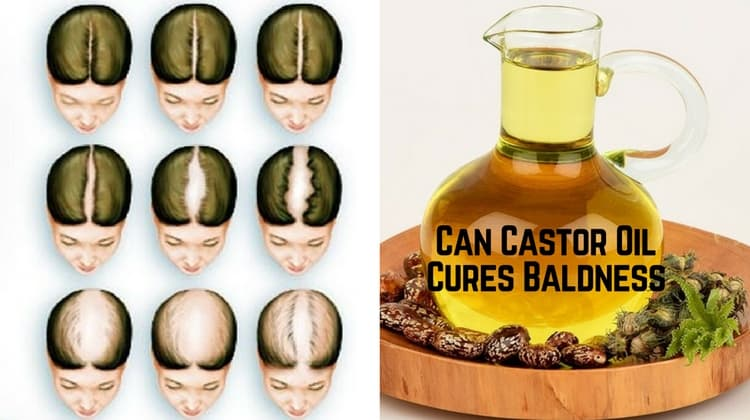 Natural Cures For Hair Loss Men