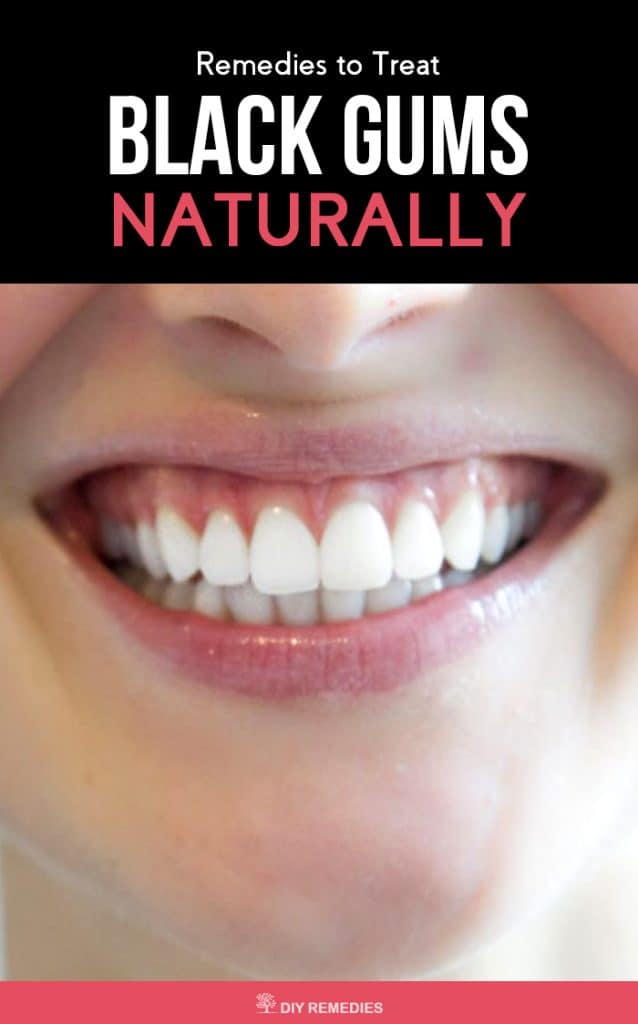 Effective Remedies to Treat Black Gums Naturally