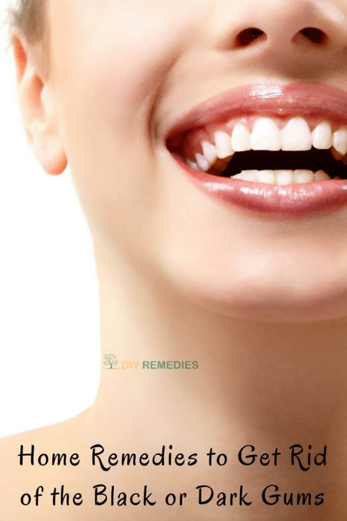 Home Remedies to Get Rid of the Black or Dark Gums