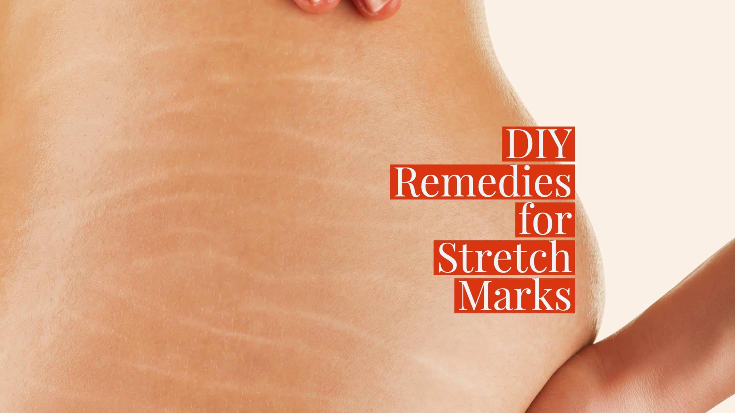 DIY Remedies for Stretch-Marks