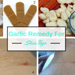 DIY Garlic Remedies for Skin Tags