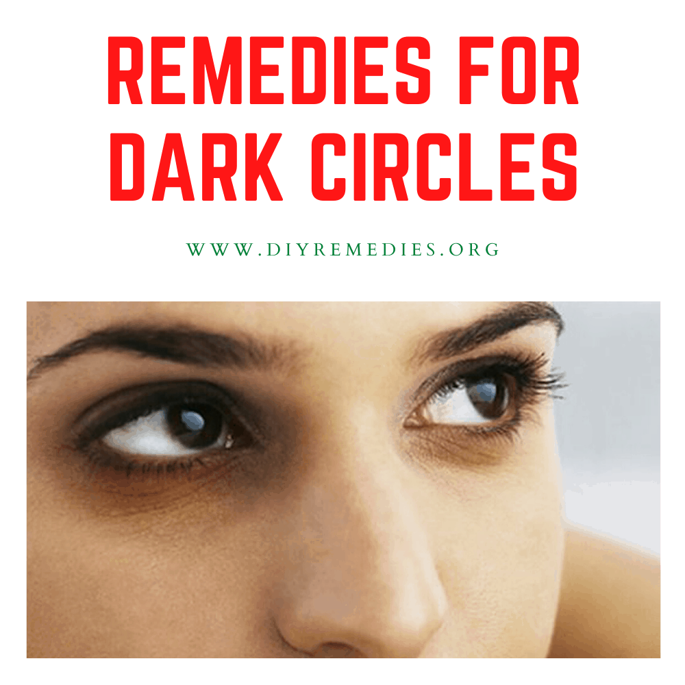 Remedies for Dark Circles