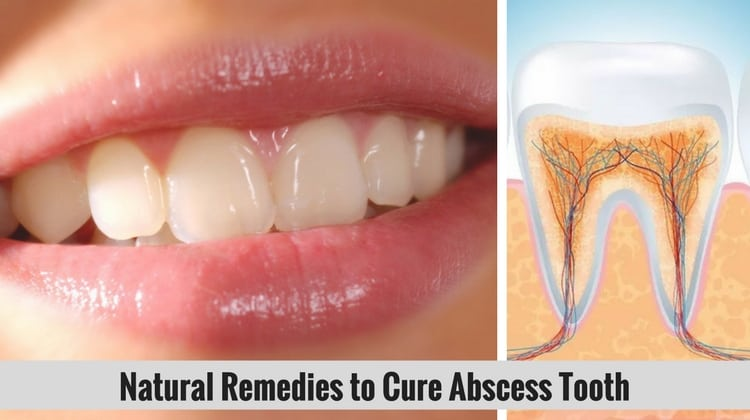 Oral Infection Natural Cures