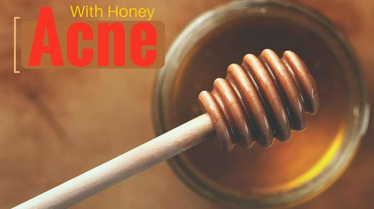 Acne With Honey