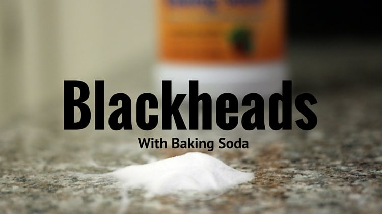 Blackheads with Baking Soda