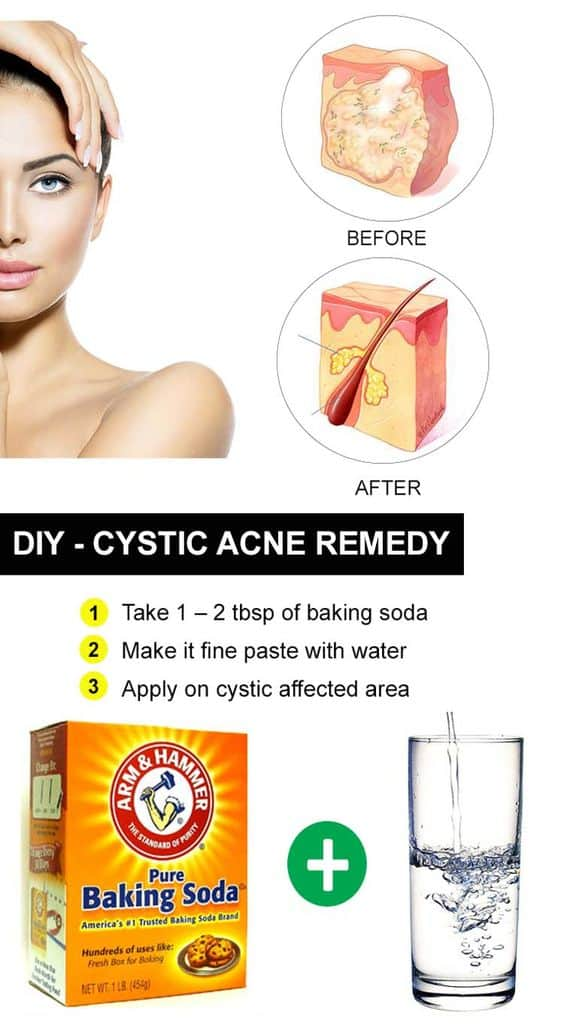 Best Natural Products For Acne Scars