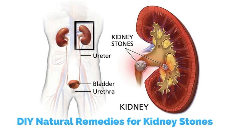 DIY Natural Remedies for Kidney Stones