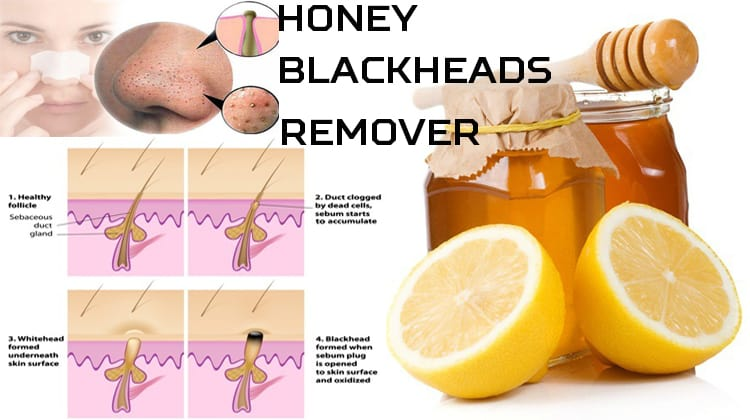 Honey Blackheads Remover