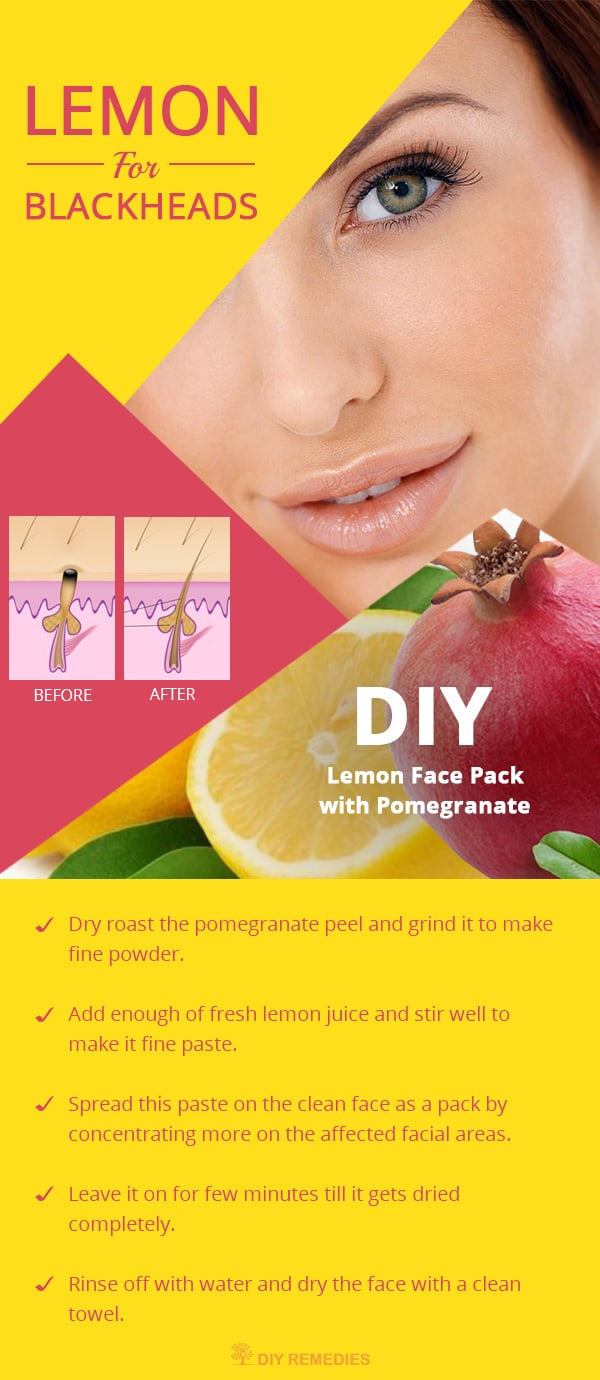 How To Remove Blackheads Naturally Home Remedies