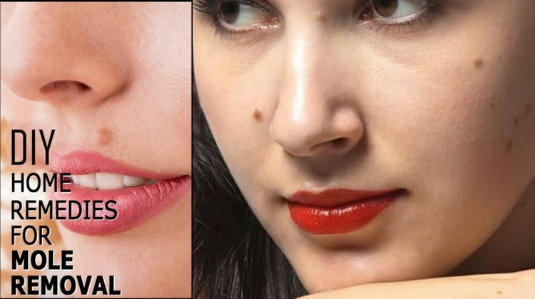 Remedies For Moles Removal