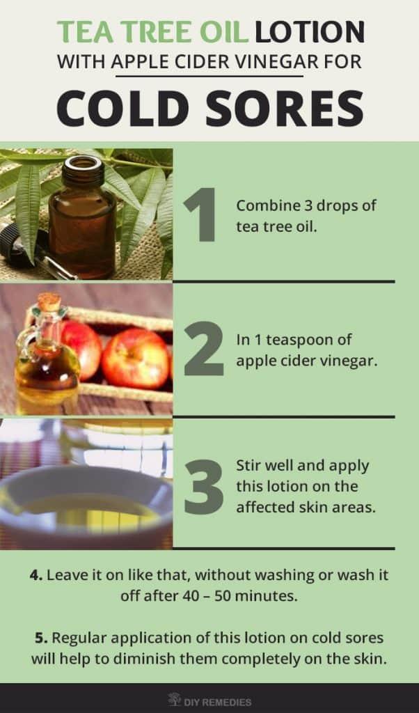 Natural Cold Sore Remedies Tea Tree Oil