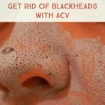 Apple Cider Vinegar to Get Rid of Blackheads