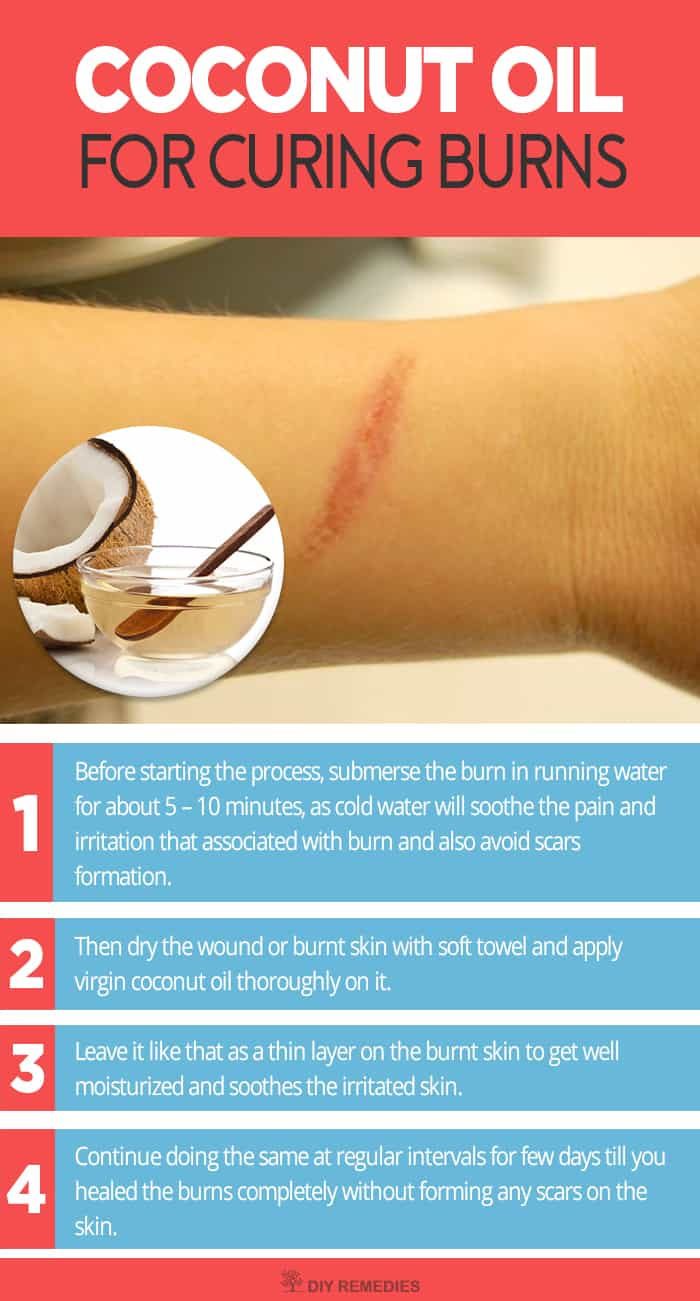 How to not get a scar from a burn