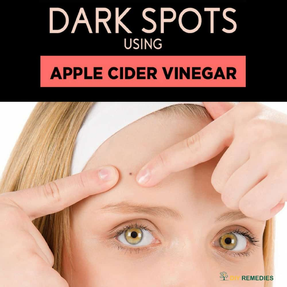 Get Rid of Dark Spots using Apple Cider Vinegar