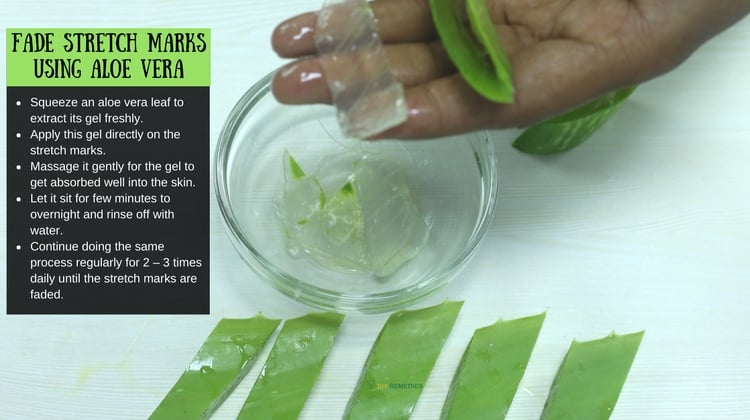 How Aloe Vera Reduces Stretch Marks