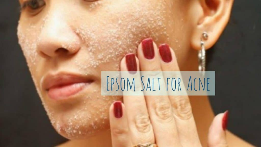 Home Remedies For Pimples That Actually Work