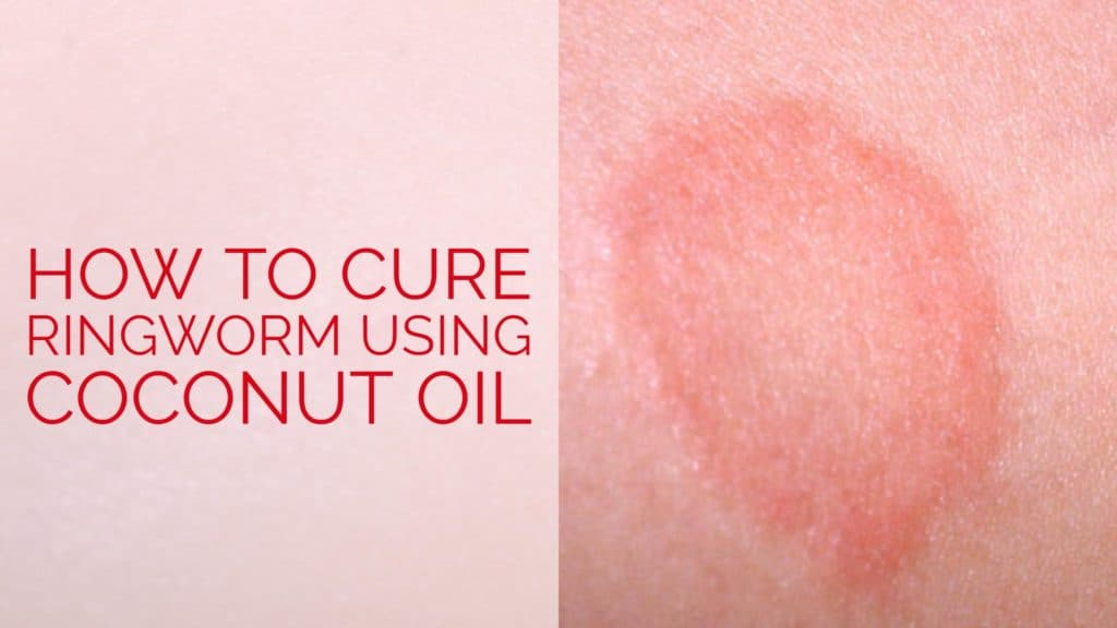 Natural Cure For Fungal Infection On Scalp