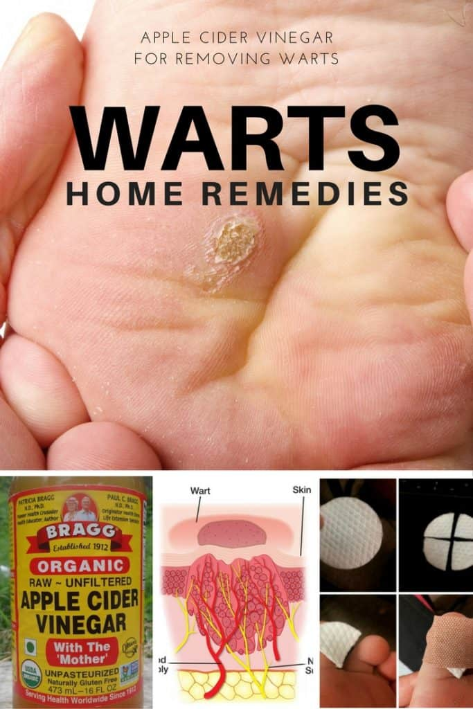 how to get rid of warts with vinegar