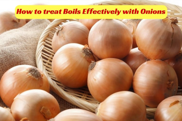 How Onions are used for Boils
