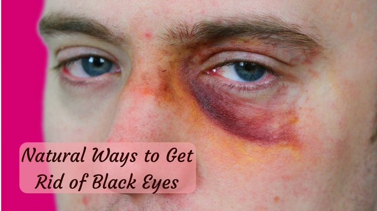 Natural Ways to Get Rid of Black Eyes