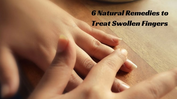 Home Remedies for Swollen Fingers
