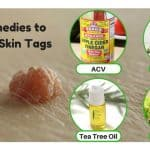 Best Remedies to Remove Skin Tags Naturally