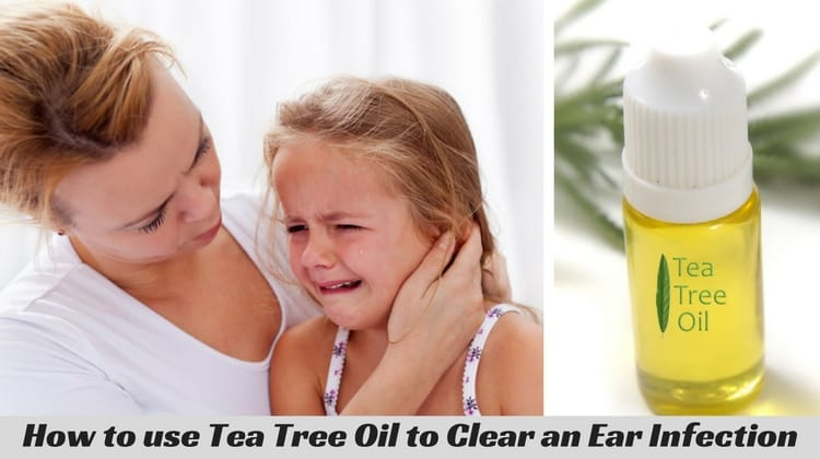 How to Treat Ear Infection using Tea Tree Oil