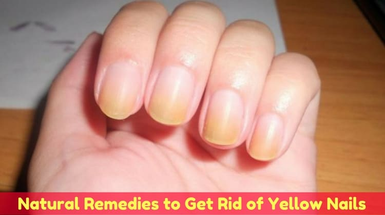 Home Remedies to Clear Yellow Nails