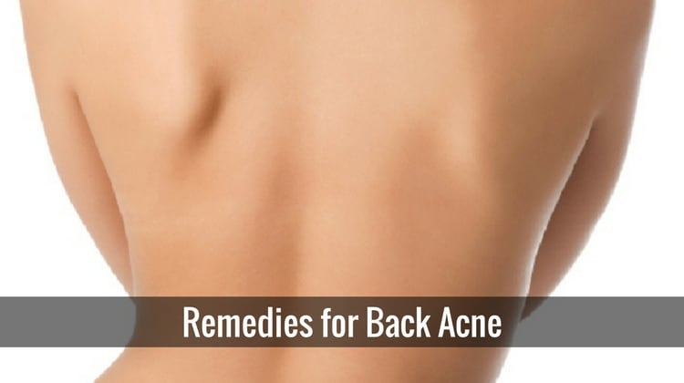 Home Remedies for Back Acne